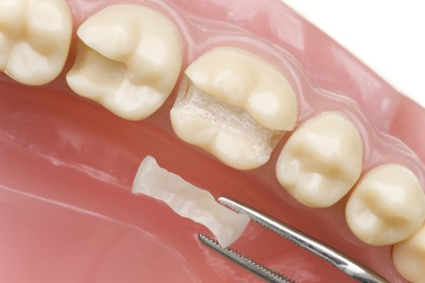 Benefits Of Dental Sealants For Teeth